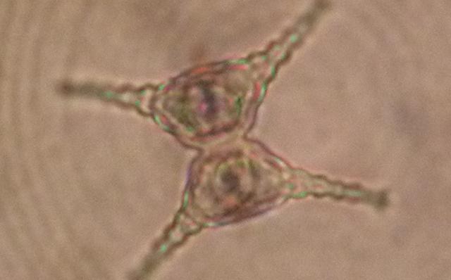 绿藻门--角星鼓藻